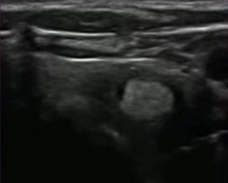 Lesione iperecogena, nodulo iperecogeno, iperecogeno