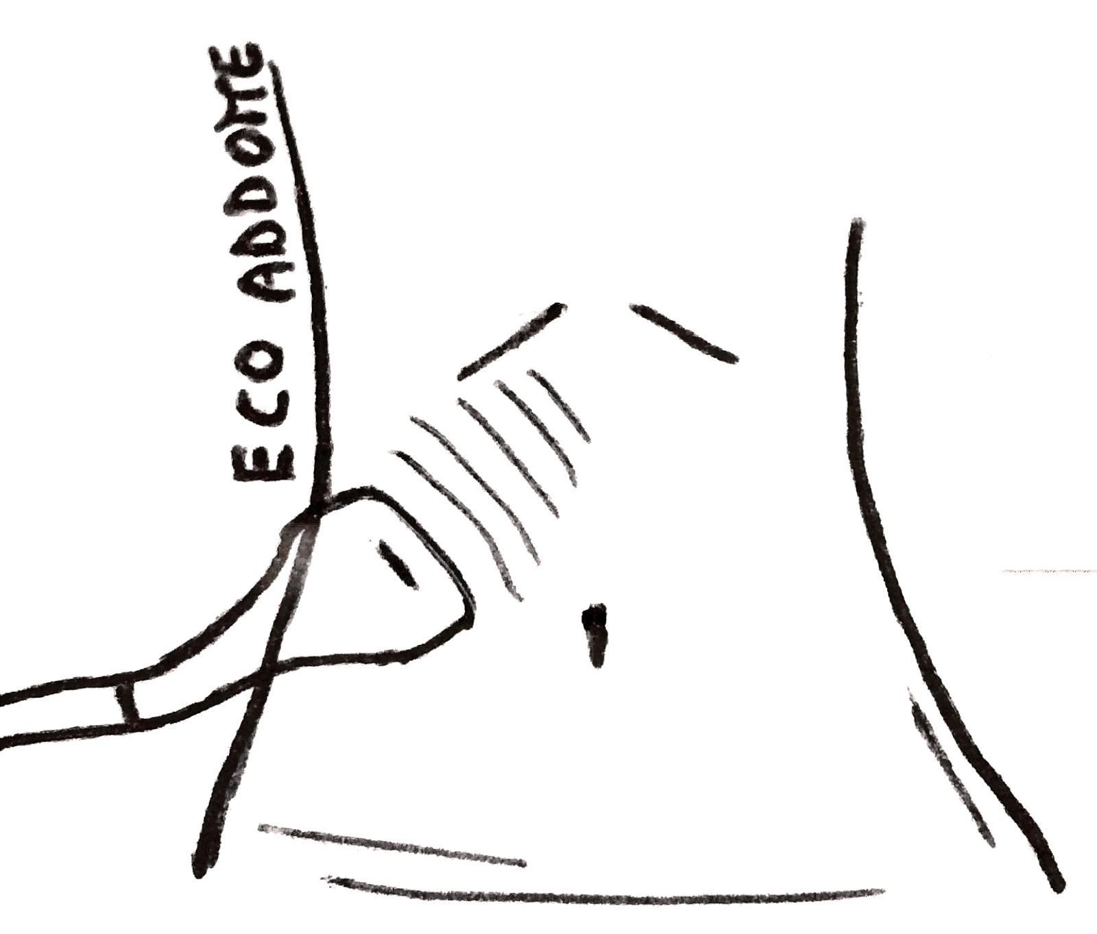 Ecografia addominale - condotta di un esame