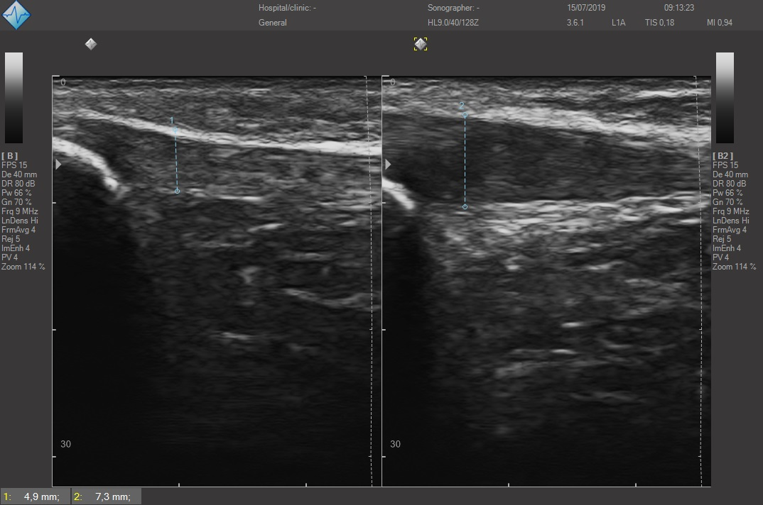 Sezione longitudinale del tendine infrapatellare