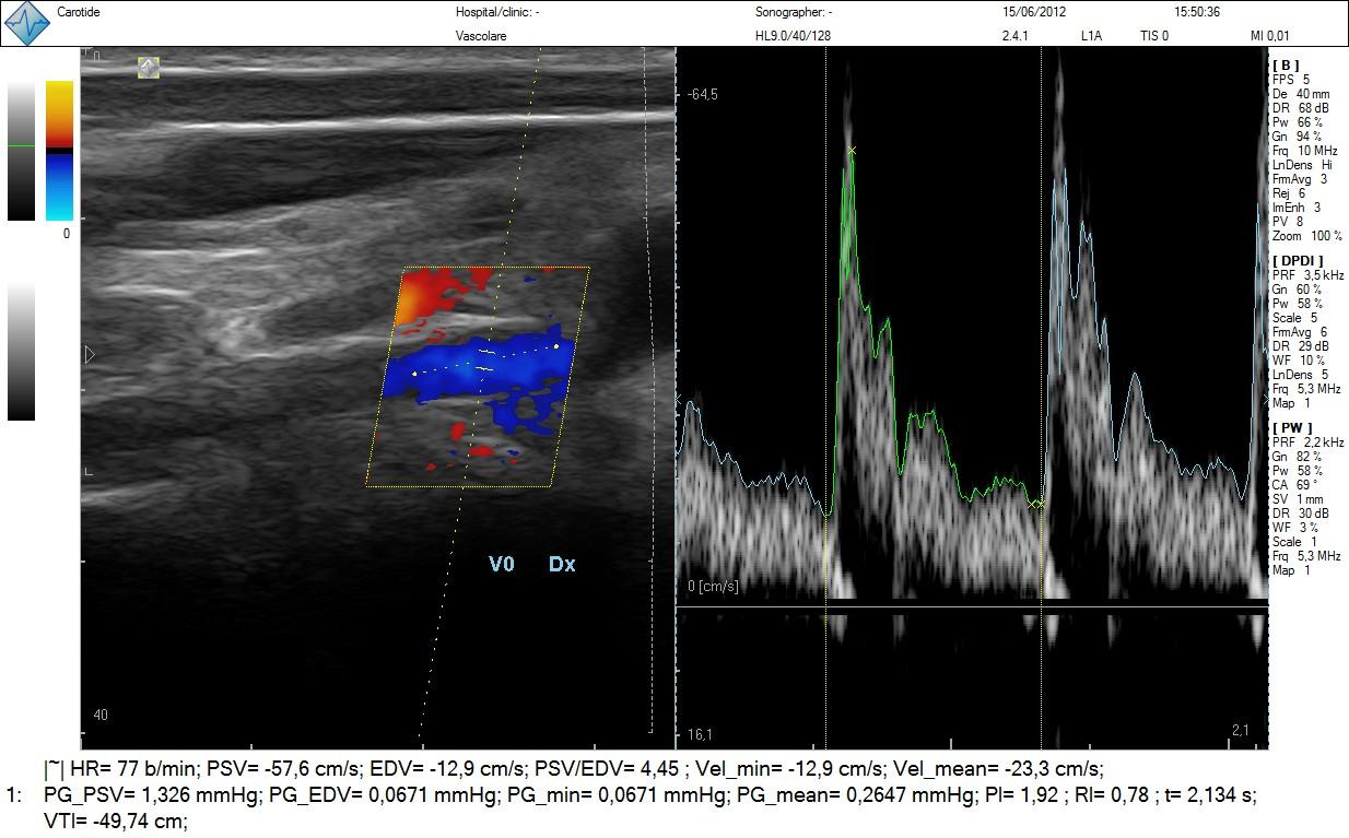 Ecografia arteria vertebrale